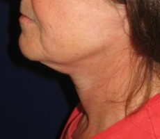 Necklift CLIENT #1 SIDE-VIEW