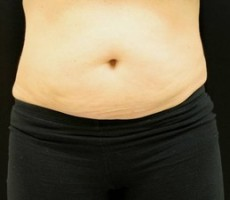 Maryland Coolsculpting CLIENT #4 FRONT-VIEW