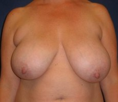Breast Reduction CLIENT #4 FRONT-VIEW
