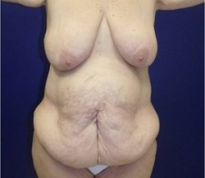 Body Lift CLIENT FRONT-VIEW