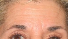 Botox CLIENT FRONT-VIEW