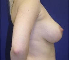 Breast Augmentation CLIENT #5 SIDE-VIEW