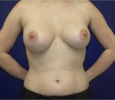 Breast Augmentation CLIENT #5 FRONT-VIEW