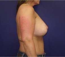 Breast Lift CLIENT #3 SIDE-VIEW