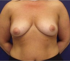 Breast Lift CLIENT #3 FRONT-VIEW