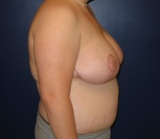 Breast Reduction CLIENT #5 SIDE-VIEW