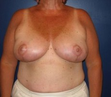Breast Reduction CLIENT #3 FRONT-VIEW