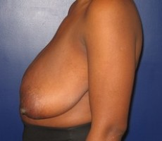 Breast Reduction CLIENT #1 SIDE-VIEW