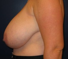 Breast Reduction CLIENT #2 SIDE-VIEW