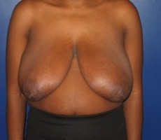 Breast Reduction CLIENT #1 FRONT-VIEW