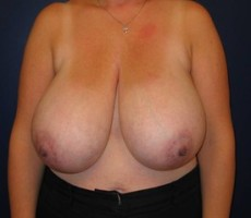 Breast Reduction CLIENT #2 FRONT-VIEW