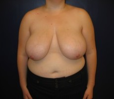 Breast Reduction CLIENT #5 FRONT-VIEW