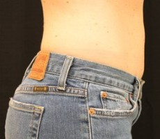 Maryland Coolsculpting CLIENT #1 SIDE-VIEW