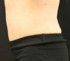 Maryland Coolsculpting CLIENT #6 SIDE-VIEW