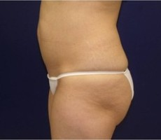 Maryland Coolsculpting CLIENT #2 SIDE-VIEW
