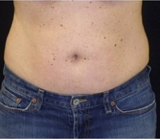Maryland Coolsculpting CLIENT #1 FRONT-VIEW