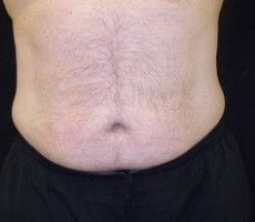 Maryland Coolsculpting CLIENT #3 FRONT-VIEW