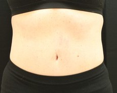 Maryland Coolsculpting CLIENT #6 FRONT-VIEW