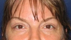 Eyelid Surgery (Blepharoplasty) CLIENT #4 FRONT-VIEW