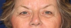 Eyelid Surgery (Blepharoplasty) CLIENT #2 FRONT-VIEW