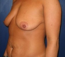 Breast Augmentation with a Tummy Tuck CLIENT #1 SIDE-VIEW