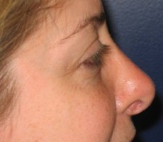 Rhinoplasty (nose surgery) CLIENT #3 SIDE-VIEW