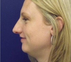 Rhinoplasty (nose surgery) CLIENT #4 SIDE-VIEW