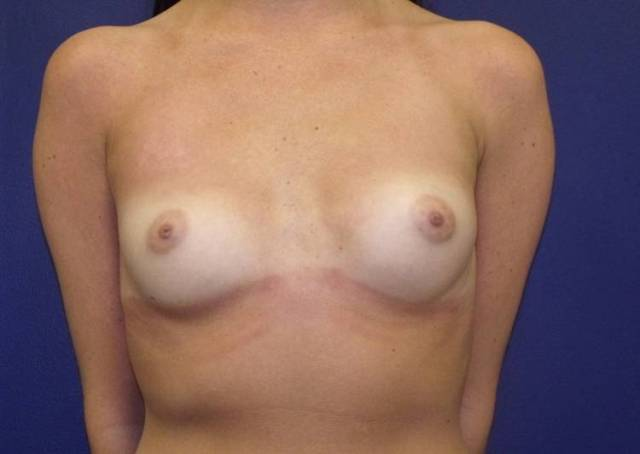 Breast Augmentation CLIENT #1 front-view