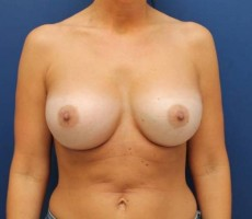 Breast Augmentation CLIENT #2 FRONT-VIEW