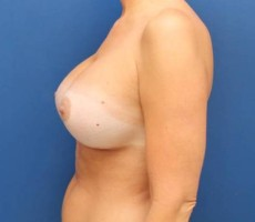 Breast Augmentation CLIENT #2 SIDE-VIEW