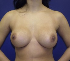 Breast Augmentation CLIENT #4 FRONT-VIEW