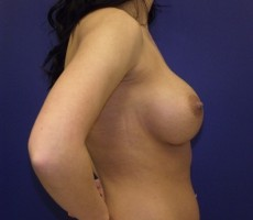 Breast Augmentation CLIENT #4 SIDE-VIEW