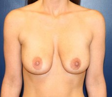 BALTIMORE BREAST LIFT, CLIENT #5 FRONT-VIEW
