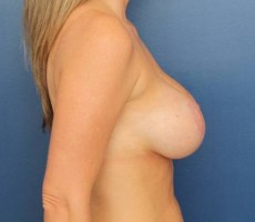 BALTIMORE BREAST LIFT, CLIENT #5 SIDE-VIEW