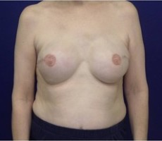 Breast Reconstruction CLIENT #5 FRONT-VIEW