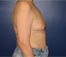 Breast Reconstruction CLIENT #5 SIDE-VIEW