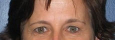 Eyelid Surgery (Blepharoplasty) CLIENT #7 FRONT-VIEW