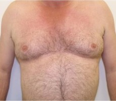 Male Breast Reduction for Gynecomastia CLIENT #2 FRONT-VIEW