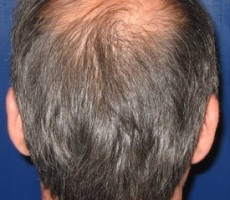 Hair Transplant CLIENT #2 BACK-VIEW