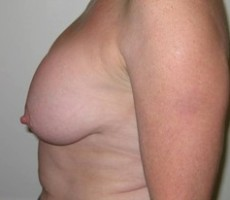 Breast Lift CLIENT #4 SIDE-VIEW