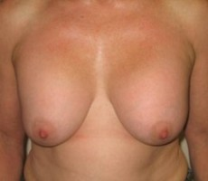 Breast Lift CLIENT #4 FRONT-VIEW