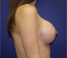 Breast Augmentation CLIENT #3 SIDE-VIEW