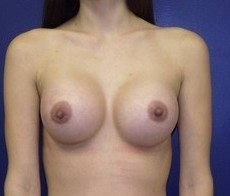 Breast Augmentation CLIENT #3 FRONT-VIEW