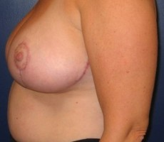 Breast Lift CLIENT #1 SIDE-VIEW