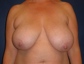 Breast Lift CLIENT #1 FRONT-VIEW