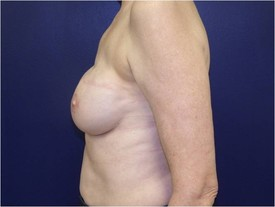 Breast Reconstruction CLIENT #4 SIDE-VIEW
