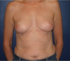 Breast Reconstruction CLIENT #4 FRONT-VIEW