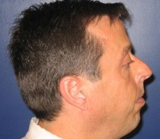 Chin Implant CLIENT SIDE-VIEW
