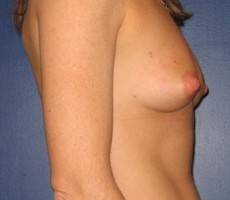 Breast Reconstruction CLIENT #3 SIDE-VIEW