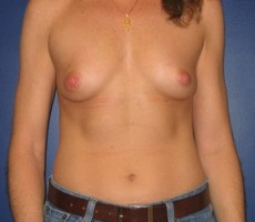 Breast Reconstruction CLIENT #3 FRONT-VIEW